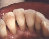 EARLY AND MODERATE PERIODONTITIS 2