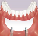 Retain an Overdenture with several implants.