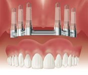 Support and Retain an Overdenture on a bar attached to several implants.