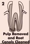 Pulp Removed And Root Canals Cleaned