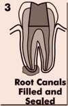 Root Canals Filled And Sealed